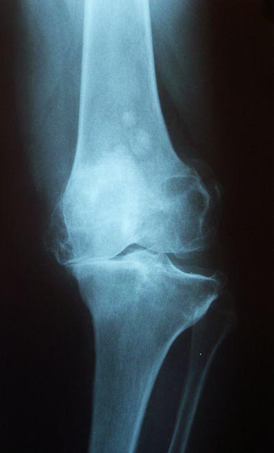 67Артрофиброз коленного сустава что