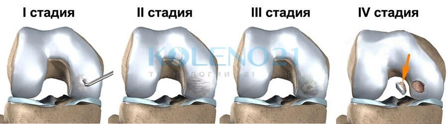 Лечение болезни Кенига | Рассекающий остеохондрит коленного сустава